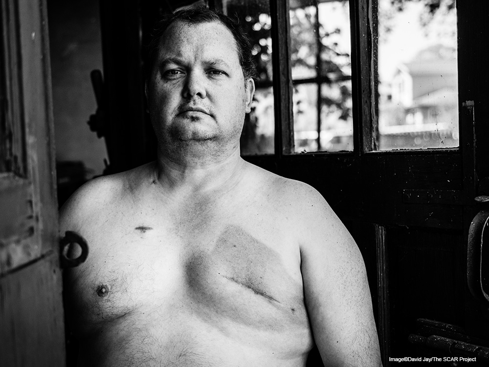 Launching The SCAR Project: Male Breast Cancer by David Jay